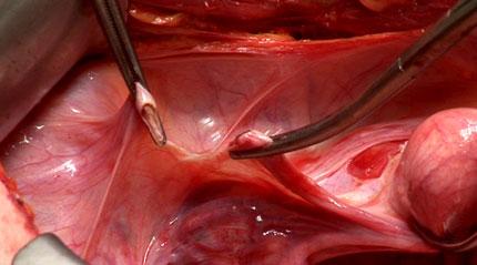 Ligamentum Rotundum