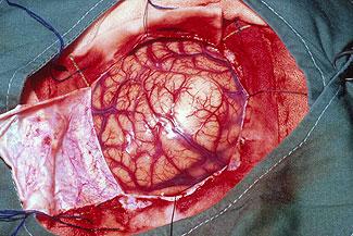 Image Result For Alien Implant Back