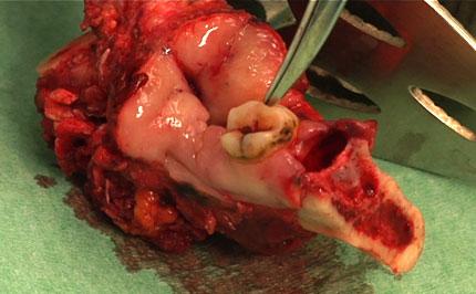 Resected mandibular bone segment