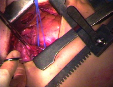 Video still (lobectomy) from a surgical light camera