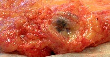 Dark metastatic lymph node
