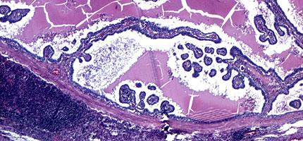 Papillary carcinoma of the thyroid.