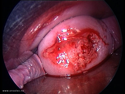 Video still from a vaginal trachelectomy