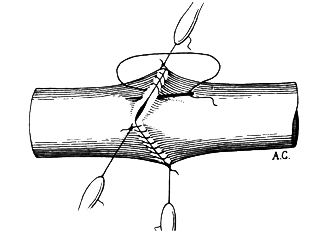 triangulation_suture.png