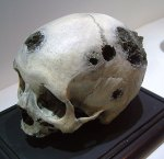 A skull with several tumors. Photo by Øystein Horgmo © All rights reserved.
