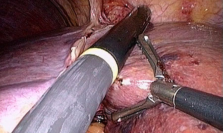 An endoscopic ultrasound probe is used to map the blood vessels.