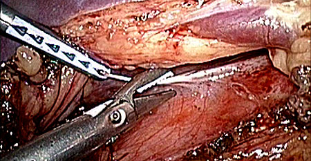 Cutting through the serosa of the pancreas.
